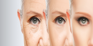 Treatment-Anti-Aging